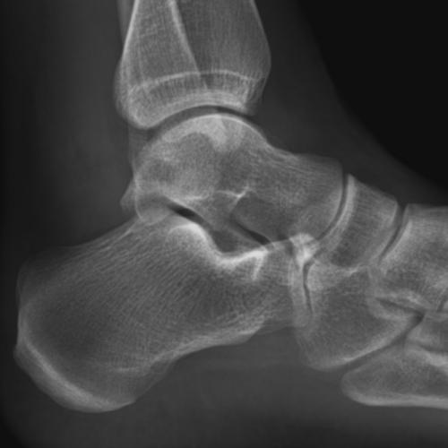 radiologie paris 17 18 cheville pied
