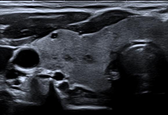 echo thyroide paris